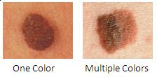 Moles: Color