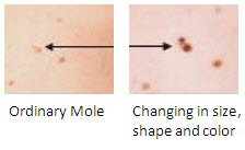 Moles: Evolution